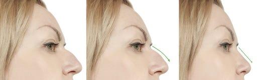 Kvinnlig näsknöl för efter tillvägagångssätt royaltyfria bilder