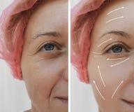 Kvinnliga ansikts- kosmetiska tillvägagångssätt för skrynklabehandling före och efter, pil arkivbilder