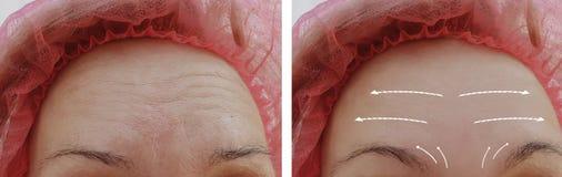 Kvinnliga ansikts- kosmetiska tillvägagångssätt för skrynklor före och efter, pil arkivfoto