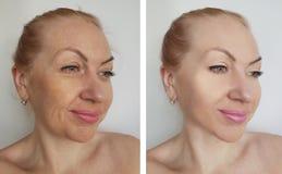 Kvinnliga behandlingar för korrigering för spänning för effekt för kosmetolog för skönhetskrynklor före och efter royaltyfria foton