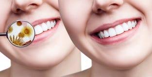 Kvinnliga tänder för leende som före och efter gör ren från bakterier Royaltyfria Bilder
