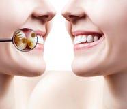 Kvinnliga tänder för leende som före och efter gör ren från bakterier Fotografering för Bildbyråer