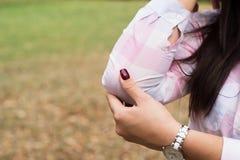 Kvinnligns armbåge, smärtar och skadan fotografering för bildbyråer