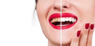 Kvinnligt leende före och efter som bleker Whitening av tänder Arkivbild