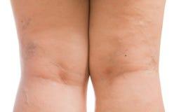 Kvinnor för åderbråcks åder som isoleras på vit bakgrund Fotografering för Bildbyråer