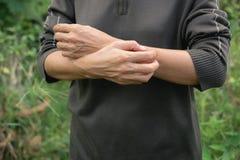 Kvinnorna skrapar armar själv från att klia i sunt Co royaltyfri fotografi
