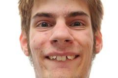 Lächeln des jungen Mannes, wer Klammern benötigt lizenzfreie stockbilder