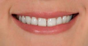 Lächeln mit den Zähnen Stockfotografie
