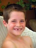 Lächeln u. fehlender Zahn Lizenzfreie Stockfotos