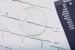 Läkarundersökning ECG och lins royaltyfria bilder