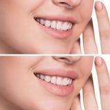 Lèvres femelles avant et après l'augmentation Image stock