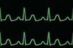 Línea del electrocardiograma que brilla intensamente Foto de archivo