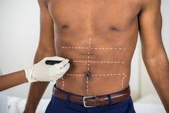 Líneas de la corrección del dibujo de la mano de la persona en el abdomen del hombre Imagen de archivo