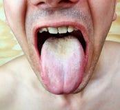 Língua da infecção Imagens de Stock Royalty Free