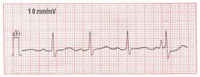 L'électrocardiogramme Photographie stock