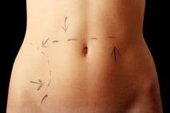 L'abdomen du femme caucasien identifié par des lignes Photographie stock libre de droits