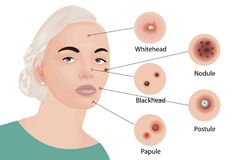 L'acné dactylographie la cosmétologie Image stock
