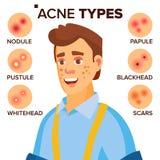 L'acné dactylographie le vecteur Homme avec l'acné Problèmes de peau faciaux Papule, Pustulem Scards Personnage de dessin animé p Images stock