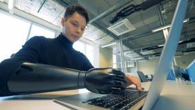 L'adolescent masculin avec une main synthétique dactylographie sur un ordinateur Concept robotique de bras de cyborg banque de vidéos