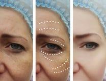 L'adulto facciale femminile corruga il trattamento paziente prima e dopo la dermatologia di procedure del collage di effetto fotografia stock libera da diritti