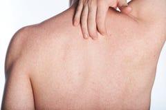 L'allergia sopra appoggia dell'uomo Fotografia Stock Libera da Diritti