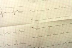 L'analyse d'ecg de cardiologie d'Ecg analysent le battement, Image stock
