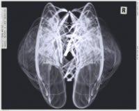 L'angelo traversa la versione volando dei raggi X Immagini Stock