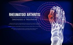 L'artrite reumatoide disossa del piede illustrazione di stock