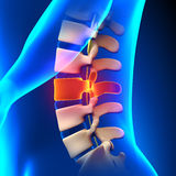 L3 Disc - Lumbar Spine Stock Images