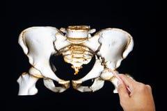 L doutor que olha a imagem do filme do raio X 3d da pelve ou os doutores que analisam o raio X da pelve fraturam o osso púbico Foto de Stock Royalty Free
