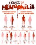 L'emofilia causa il manifesto illustrazione di stock