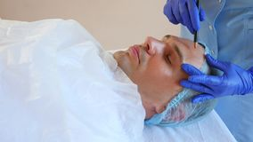L'estetista fa le marcature sul fronte di un uomo con una matita Chirurgia plastica Plastica del fronte di contorno per gli uomin archivi video
