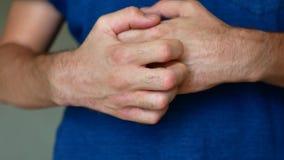 L'homme a le psoriasis L'homme est nerveux et se gratte les mains clips vidéos