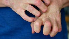 L'homme a le psoriasis L'homme est nerveux et se gratte les mains banque de vidéos