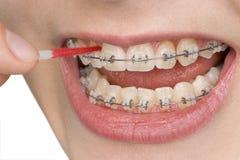 L'igiene orale Fotografie Stock