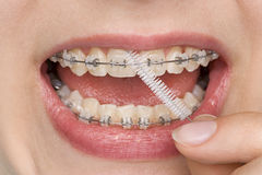 L'igiene orale Fotografia Stock Libera da Diritti
