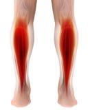 l'illustration 3D du gastrocnemius, une partie de jambes Muscle l'anatomie Photos stock