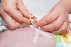 L'infirmière fixe le tube de gastrostomy avec la correction médicale du bébé nouveau-né dans l'unité néonatale de soins intensifs Image libre de droits