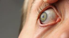 L'occhio umano spalancato, pupilla sta guardando al lato, la macro del primo piano, spazio della copia Fotografia Stock Libera da Diritti