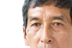 L'oeil asiatique de vieil homme de plan rapproché, ses yeux sont Pinguecula Photos stock