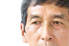 L'oeil asiatique de vieil homme de plan rapproché, ses yeux sont Pinguecula Photo libre de droits
