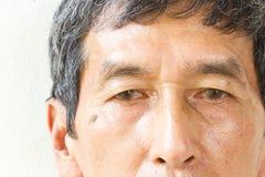 L'oeil asiatique de vieil homme de plan rapproché, ses yeux sont Pinguecula Photographie stock