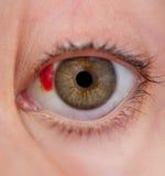 L'oeil blessé Images libres de droits