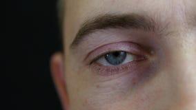 L'oeil d'un plan rapproché d'homme L'homme a un oeil rouge pour la fatigue et l'effort banque de vidéos