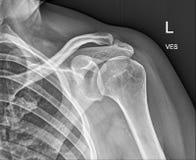 L'osso della clavicola, mette i raggi x sulle spalle medici Immagini Stock Libere da Diritti