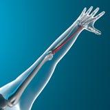 L'osso radiofonico, fa i raggi x del corpo umano Fotografie Stock