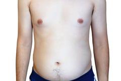 L'uomo è più probabile ostruire le arterie, uomo grasso con una grande pancia immagini stock libere da diritti