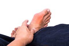 L'uomo abbraccia il piede con infiammazione dolorosa e gonfiata di gotta immagini stock libere da diritti