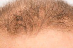L'uomo controlla la perdita di capelli Fotografia Stock Libera da Diritti