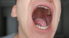 L'uomo mostra la suoi bocca, lingua e denti video d archivio